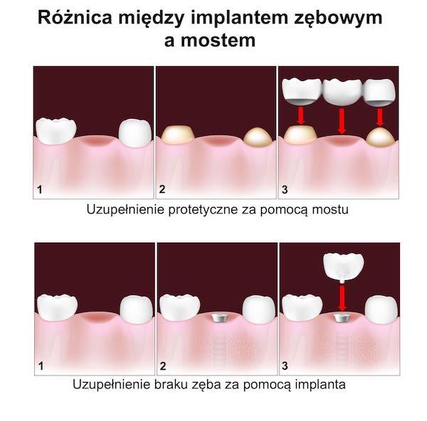 Implant zębowy a most protetyczny
