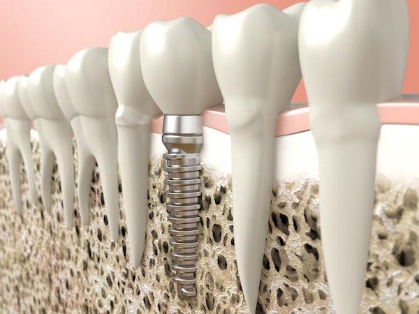 Implanty zębowe w Warszawie
