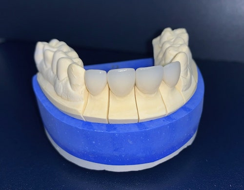 Licówki przygotowane do przyklejenia na zębach pacjenta