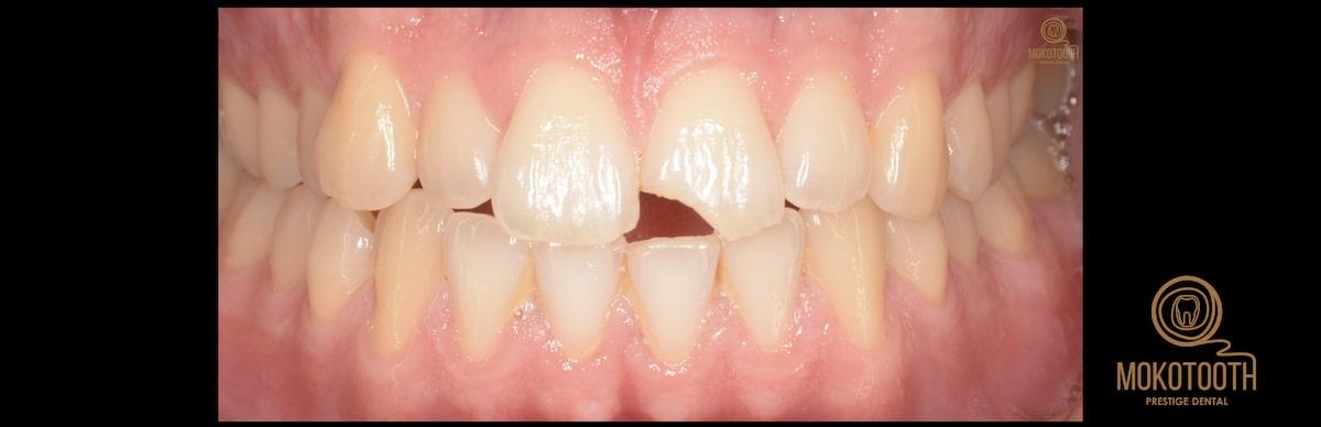 Urazy zęba należy bezwzględnie leczyć